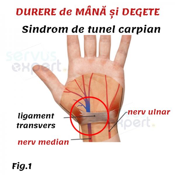 cel mai bun unguent pentru articulații și ligamente articulațiile rănite din cauza inactivității fizice