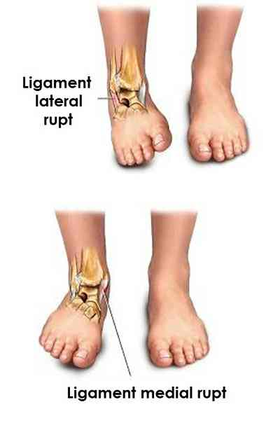 produse pentru refacerea cartilajului coloanei vertebrale