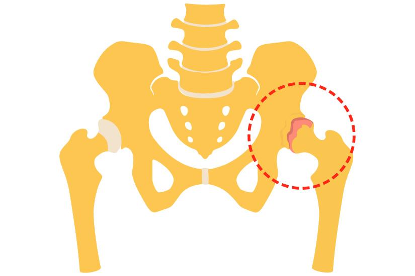 plan de examinare a durerilor articulare medicamente pentru displazia genunchiului