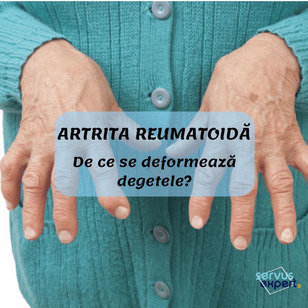 artrita reumatoidă tratată cu metotrexat dureri articulare precoce