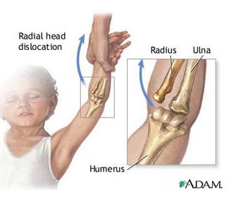 leziune musculară a cotului durere ascuțită în articulațiile degetelor de la picioare