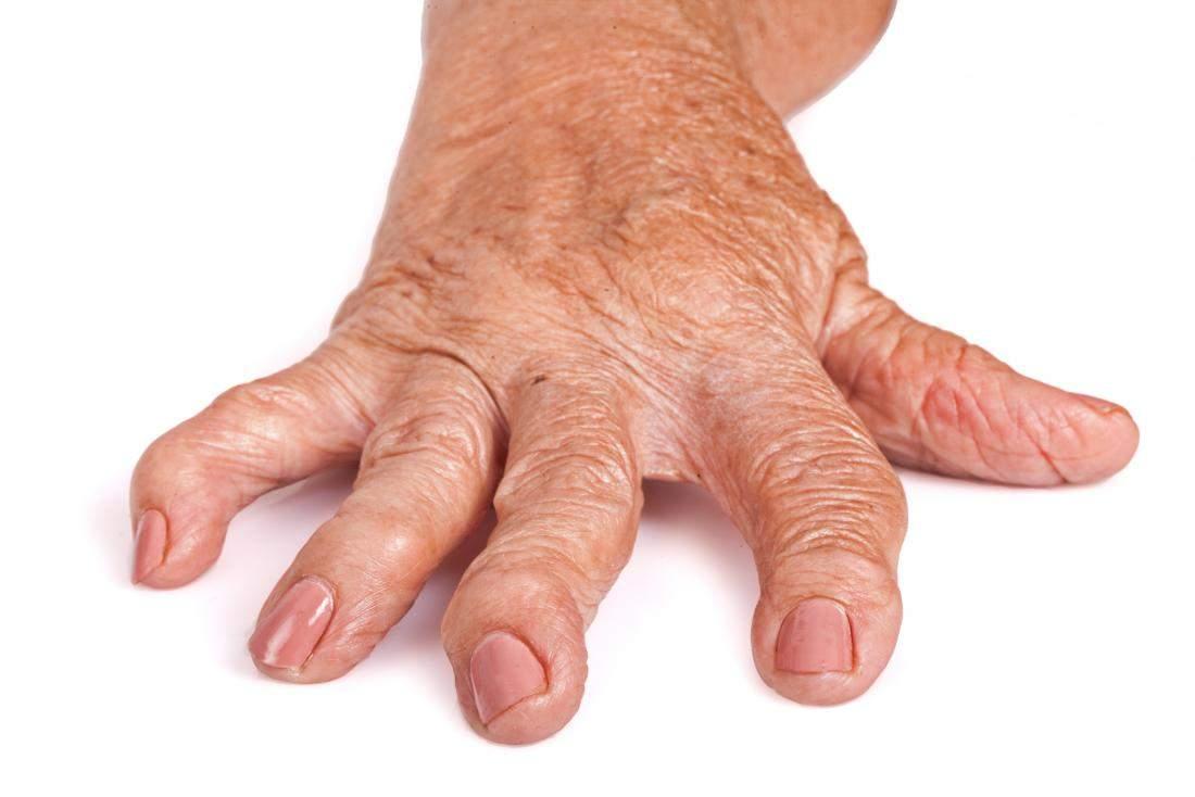 Artrita psoriazică | Reumatologie | Ghid de boli
