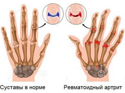 ameliorați inflamația articulației degetului de la picior dau un grup pentru artroza articulației genunchiului