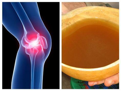 durere în articulații și oase meniscul afectează perioada de tratament a articulației genunchiului