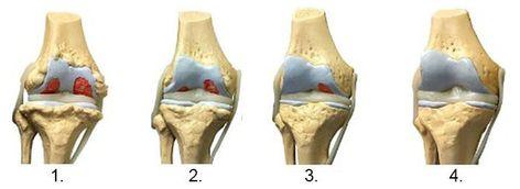 Tratamentul artrozei Vivasan