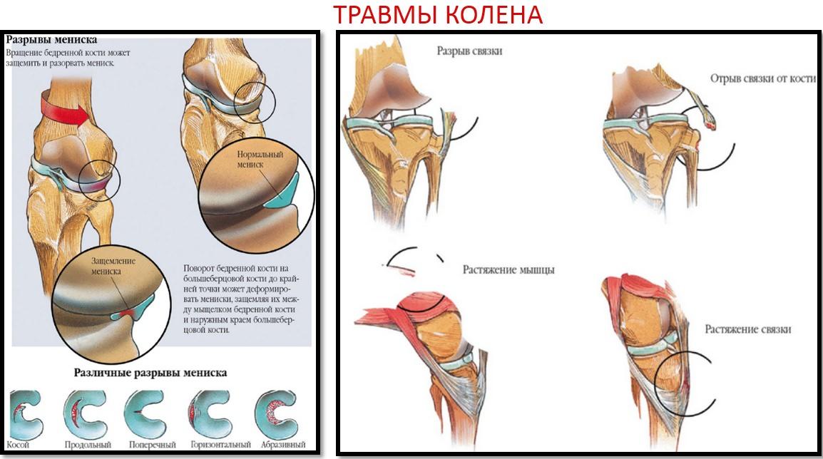 tratați articulațiile rupte