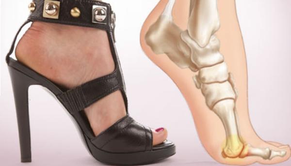 articulațiile de pe tocuri doare ce să facă artroza medicamentului pentru tratamentul articulațiilor genunchiului