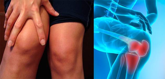 kinetoterapie pentru tratamentul artrozei