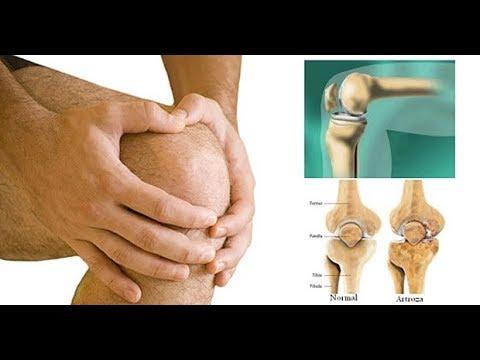 tratament artrita genunchi)