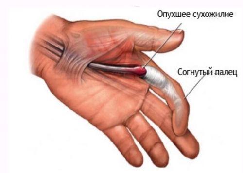 articulațiile degetelor se îndoaie prost și doare tratament pentru edemul genunchiului