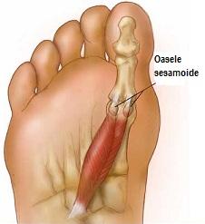 Osteocondroza articulației degetelor Articole similare