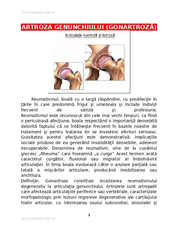 ligamentul lateral intern al articulației genunchiului doare toate oasele musculare oase doare