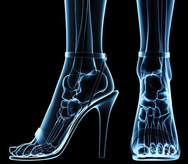 articulațiile de pe tocuri doare ce să facă forum pentru tratarea periei cu artroză