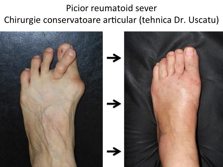 inflamația piciorului a articulațiilor