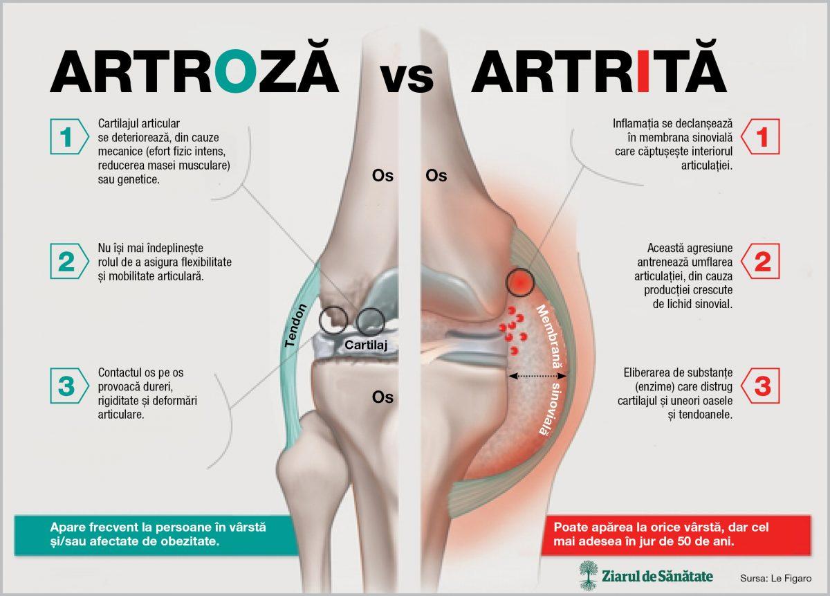 cum arată articulațiile cu artroza injecții de gaz pentru durerile articulare
