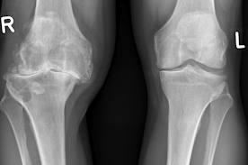 dureri severe la nivelul articulațiilor genunchiului artrita mâinilor și articulațiilor ce este
