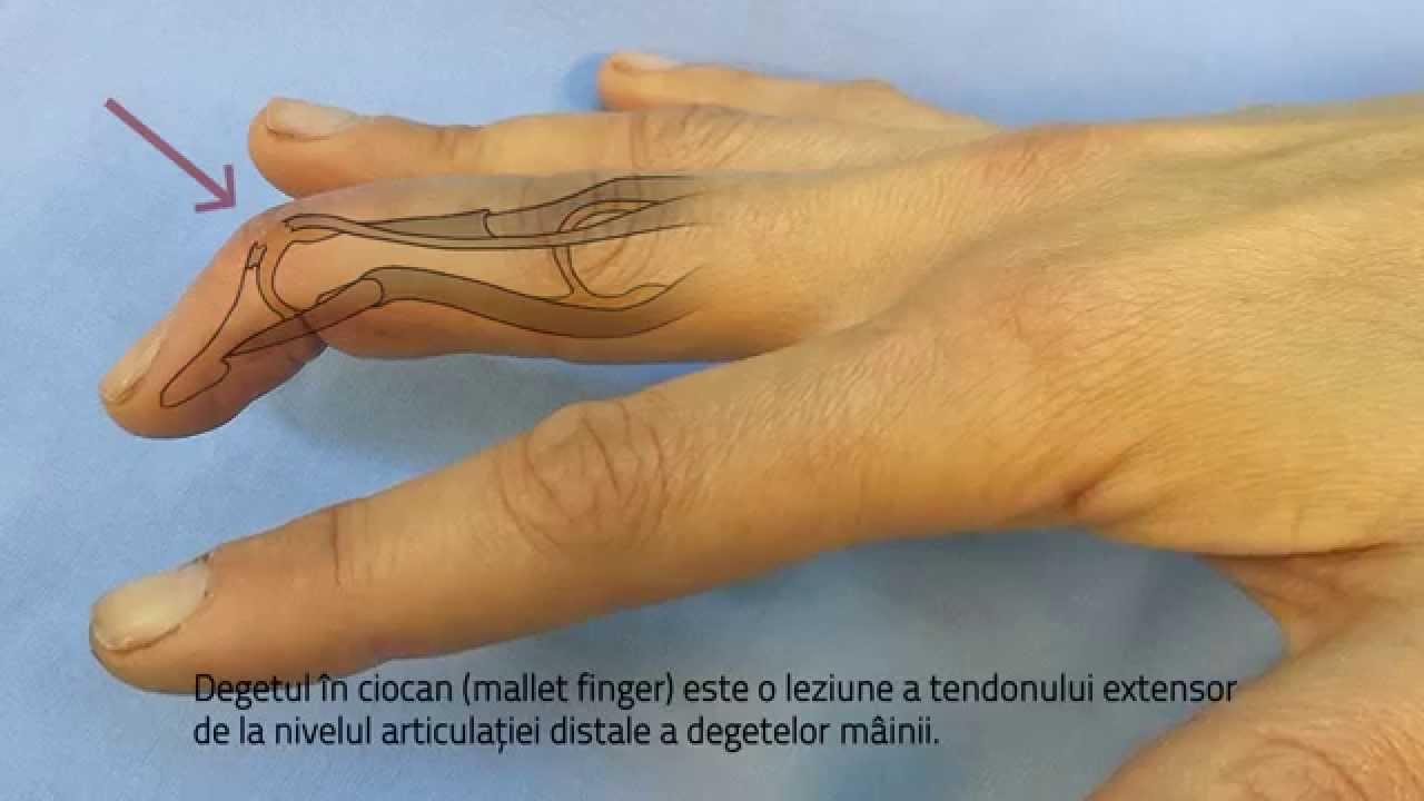 poate răni articulațiile după anestezie artroza cauzei și tratamentului articulației genunchiului