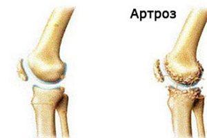Artroza articulațiilor picioarelor de gradul doi. Artroza articulațiilor picioarelor 2 grade