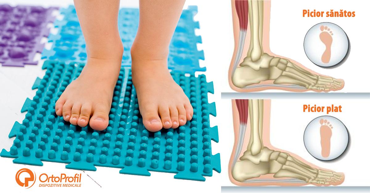 leziuni nervoase în timpul fracturii articulației cotului