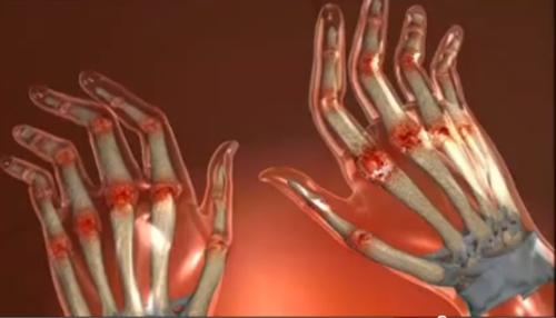 matricea durerii articulare inflamația articulară pe degetul mare provoacă