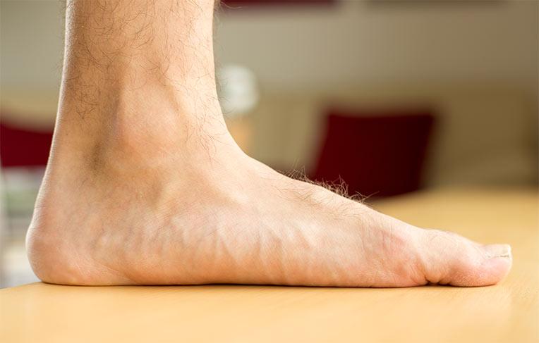 durere în articulațiile piciorului cu picioarele plate creme de balsam pentru durere în articulații