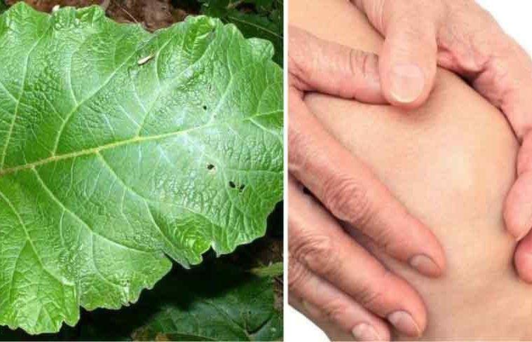 artrita articulațiilor mâinilor cum să amelioreze durerea dureri articulare după metipred