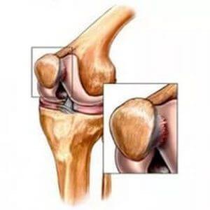 tratamentul artrozei degetelor în stadiul acut recenzii de balsam al durerii articulațiilor