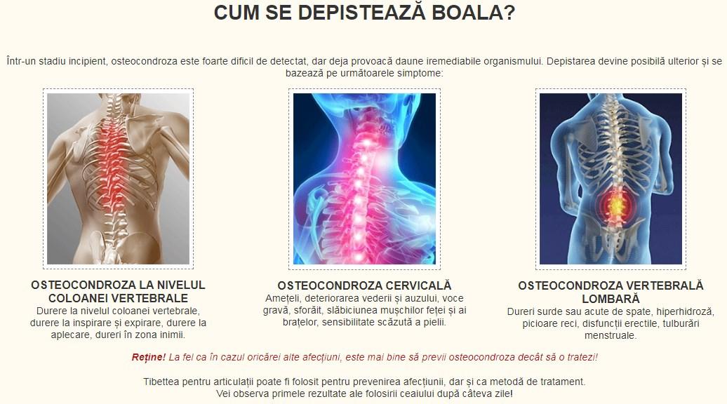varicoză și coloană vertebrală)