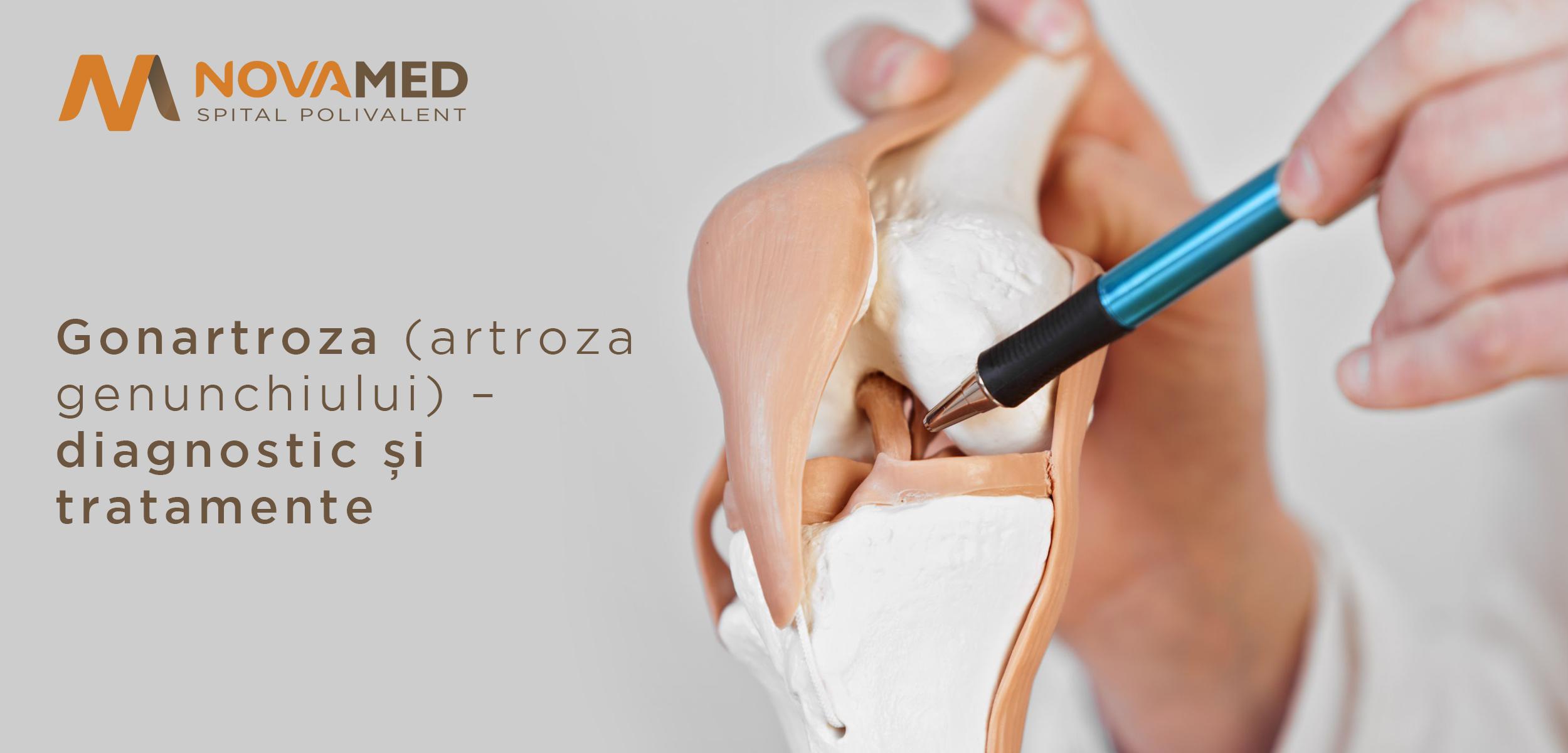 tratament și medicamente pentru artroza genunchiului diagnostic și tratament articular articular