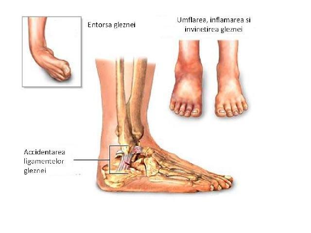 inflamația ligamentelor gleznei este