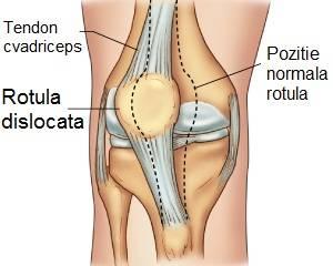 cum să tratezi entorsa la genunchi acasă