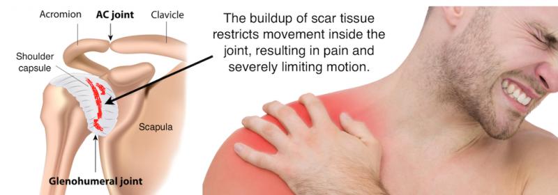 diabetul dureri articulare