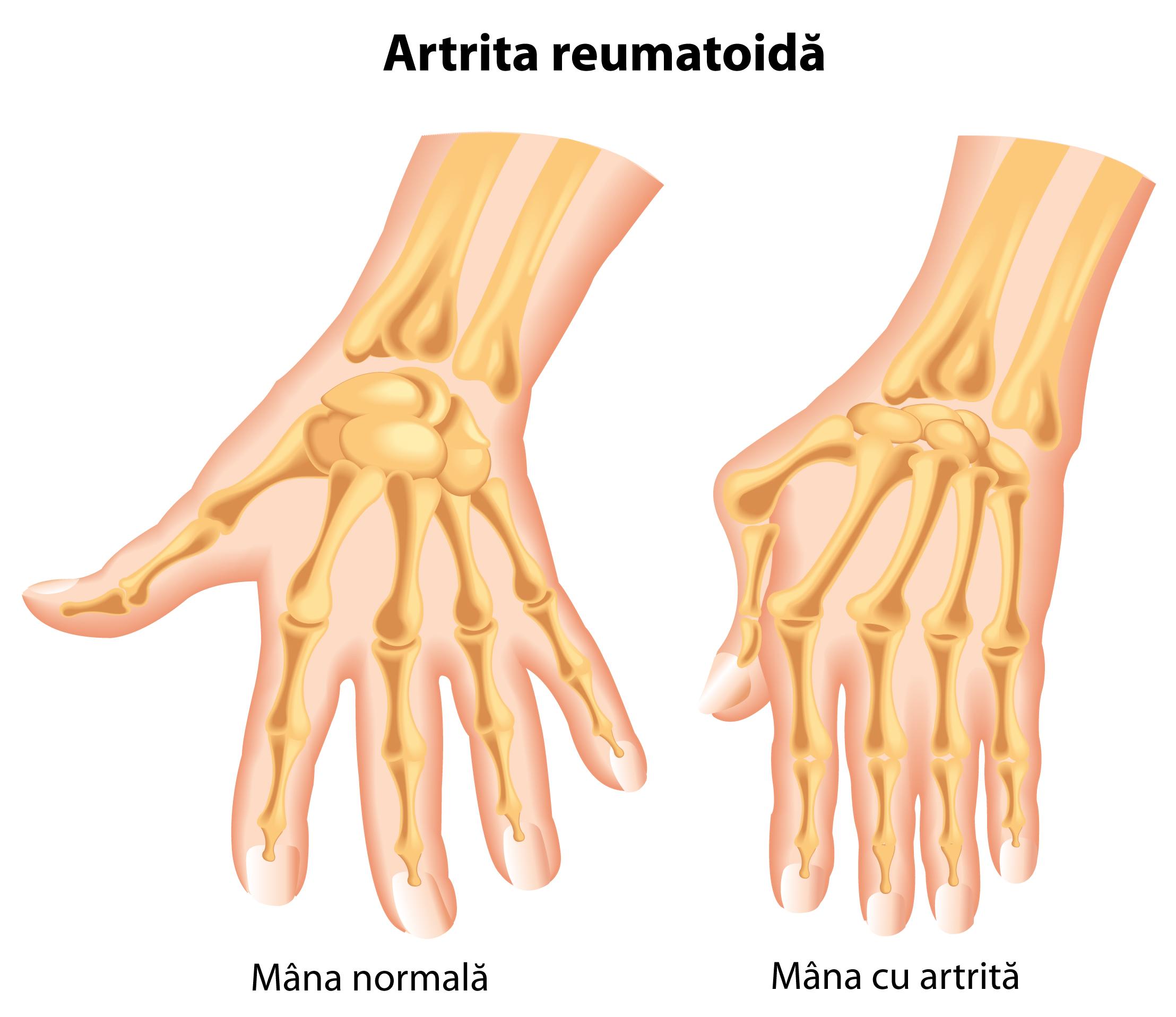 artrita deformantă a mâinilor dureri de durere în articulații mici