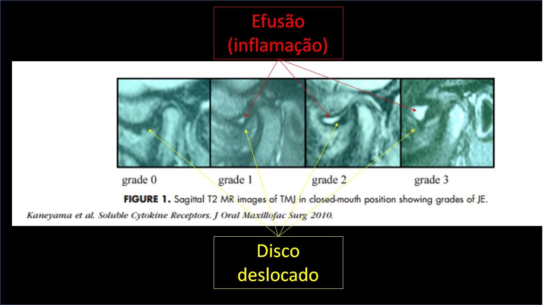 Inflamația medicamentoasă a articulației degetului mare. Durerea la degetul mare al piciorului