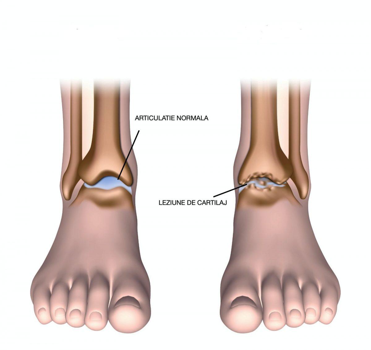 tipuri de leziuni la gleznă dureri de genunchi după hipotermie