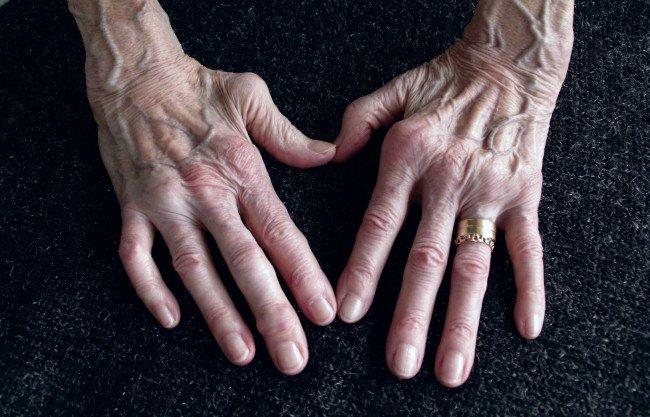 afectarea articulațiilor cu tratamentul artritei reumatoide prețul gelului articulației ieftin
