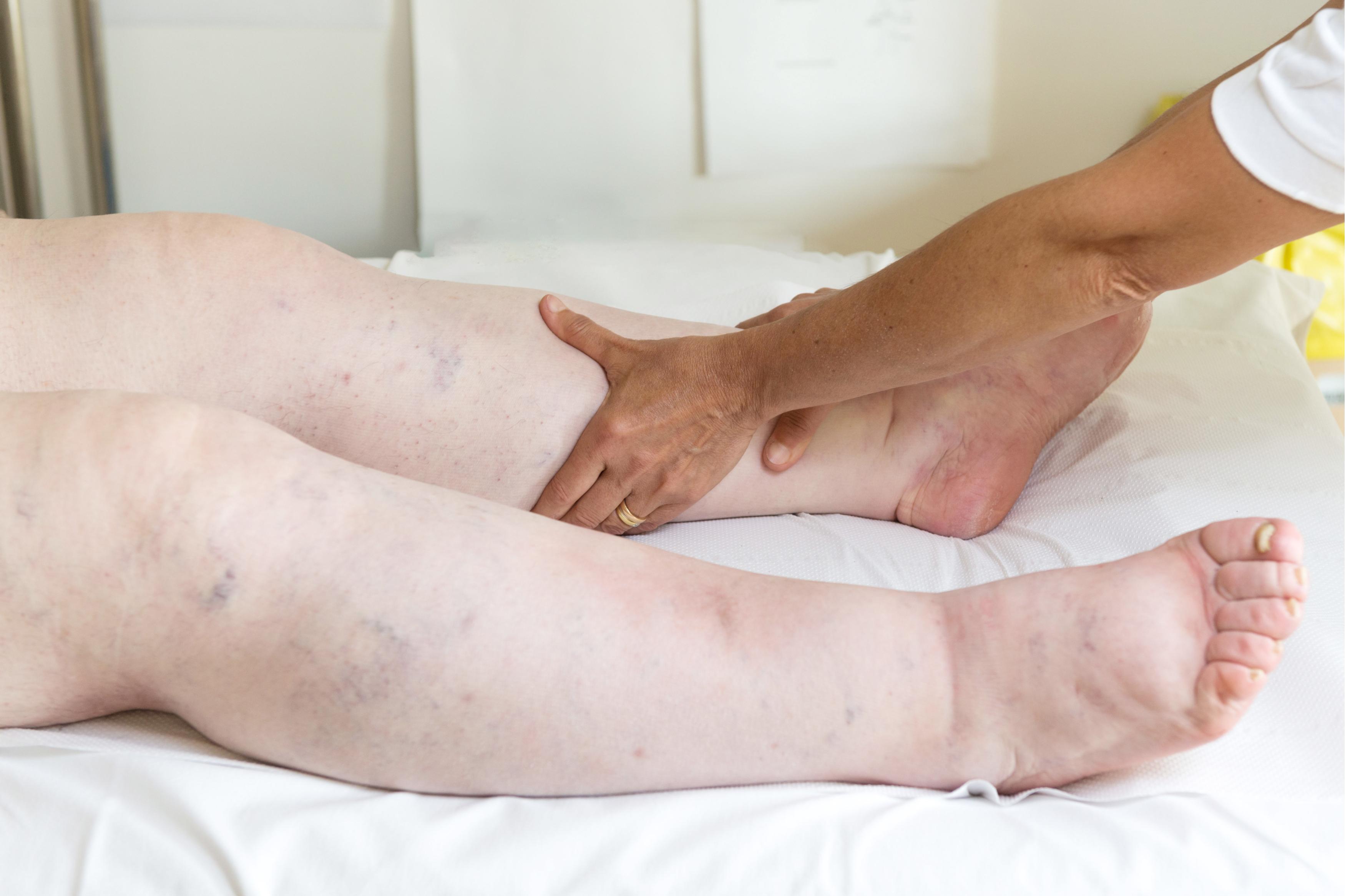 ameliorați umflarea articulațiilor picioarelor