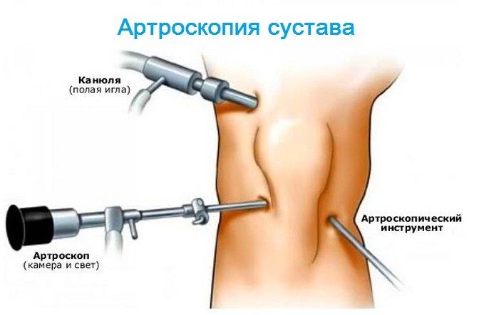 Mușchii și articulațiile întregului corp doare