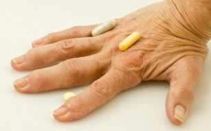 artrita alergica pe maini