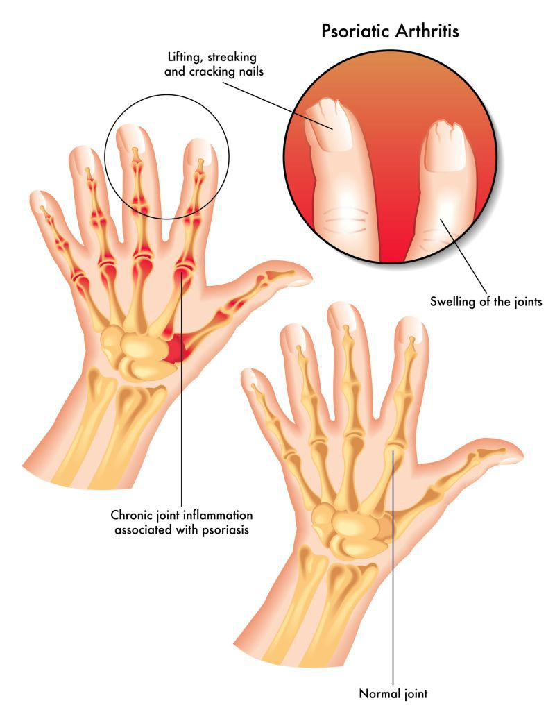 creme de osteochondroză cervicală dureri articulare la nivelul arătătorului