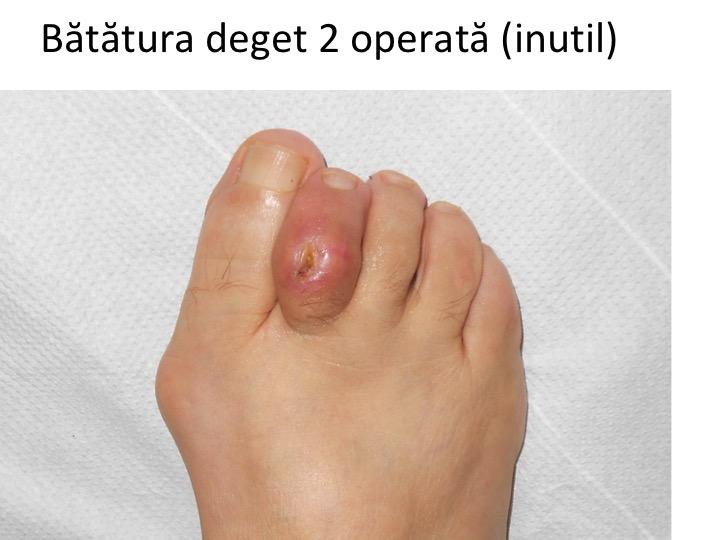 artrita picioare tratament)