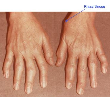 artroza tratamentului degetelor