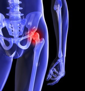 când mersul doare tratamentul articulației șoldului inflamația tuturor țesuturilor articulației