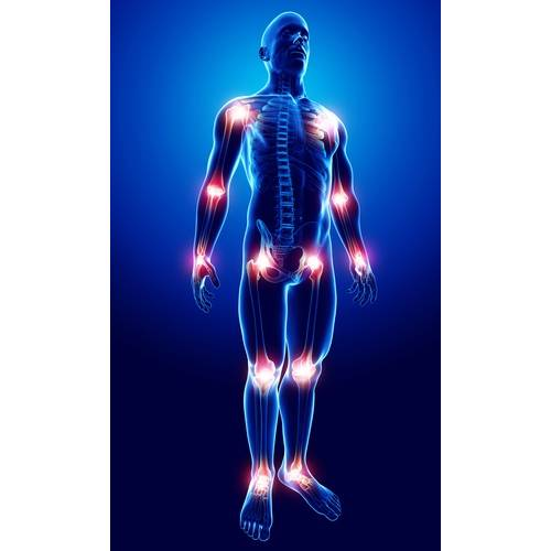 articulații dureroase sternale