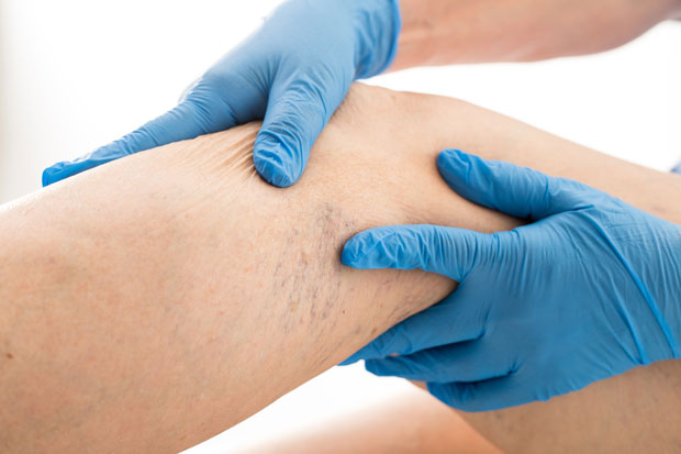 tratamentul venelor și articulațiilor