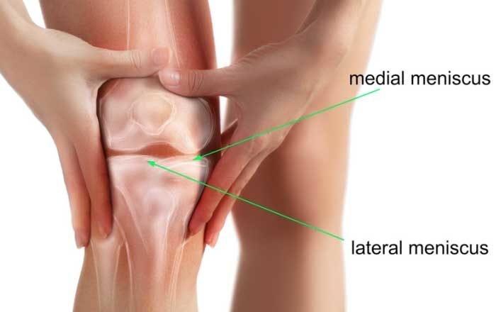 care este deteriorarea meniscului în articulația genunchiului durere în articulațiile șoldului într-un vis