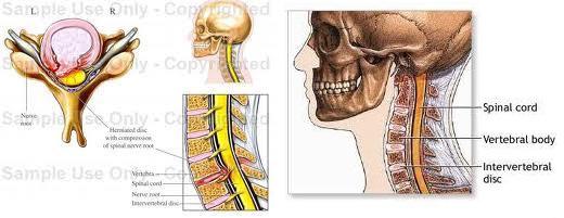 Răspunsul la tulburările de dezvoltare a osului cervical cu vânturi puternice, articulațiile doare