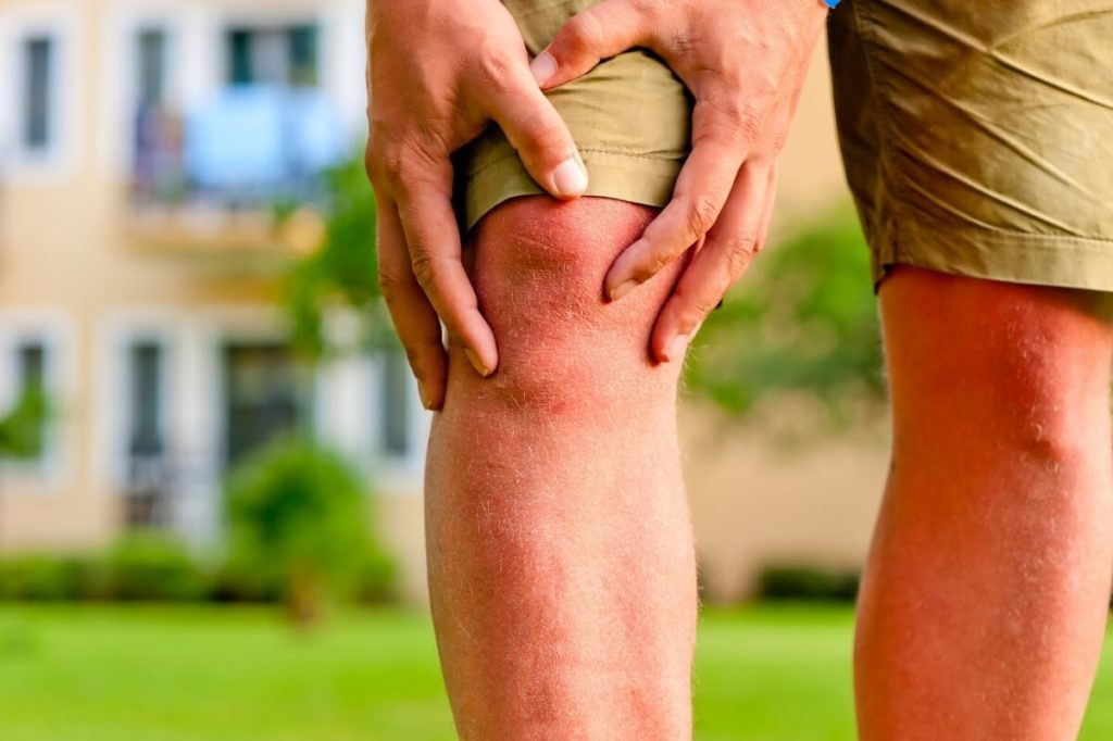 artroză falsă a genunchiului