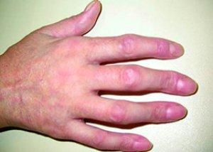 teraflex sau glucozamină cu condroitină