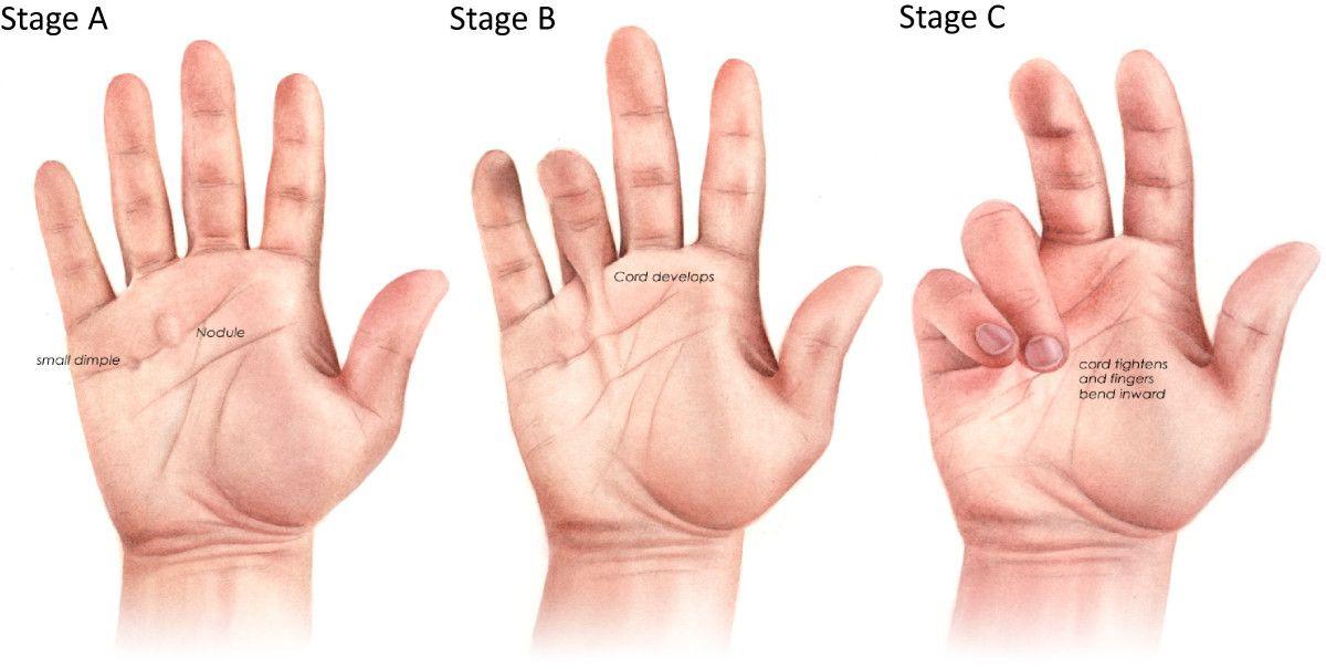 boala articulației falangiene